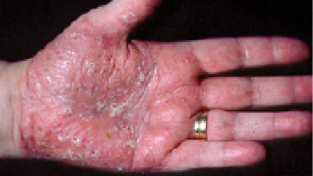 ppp psoriasis bilder